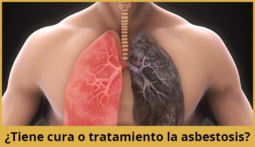 cura-tratamiento-asbestosis